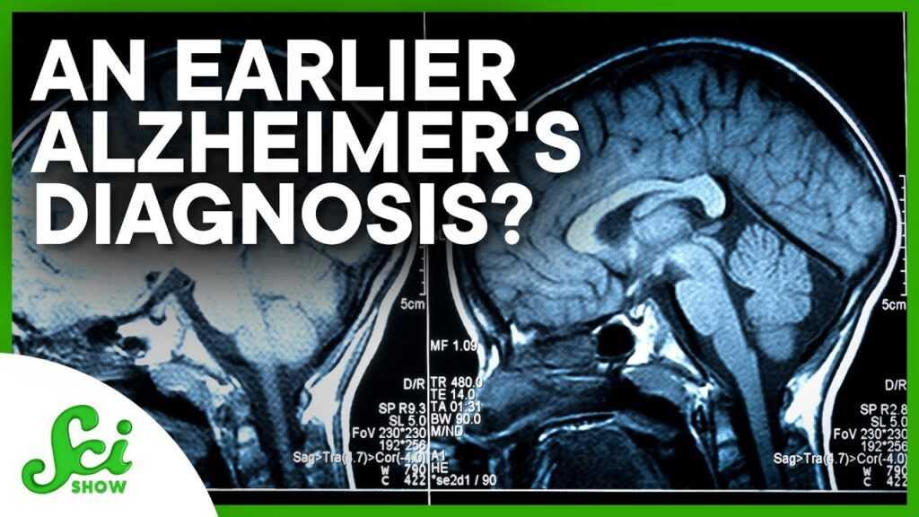 96320 Catching Alzheimer's 25 Years Earlier